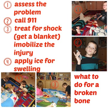 what to do for a broken bone